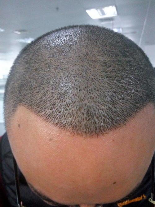 学习植发有什么要求哪里能学习植发 hot 第1张