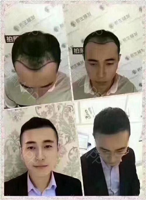 去哪学习植发学习植发贵不贵?