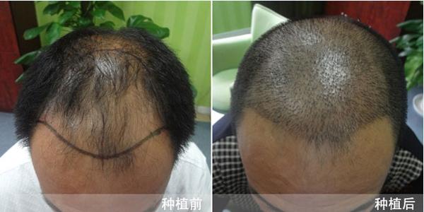 学习无痕植发需要多少钱?哪里可以学习无痕植发?