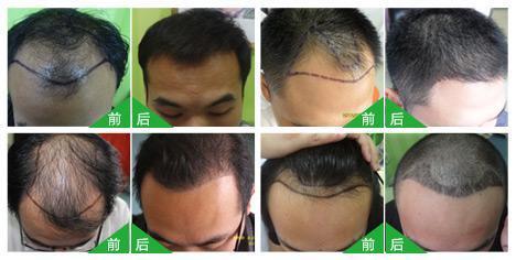 学习植发是不是合法的?哪里可以学习无痕植发?