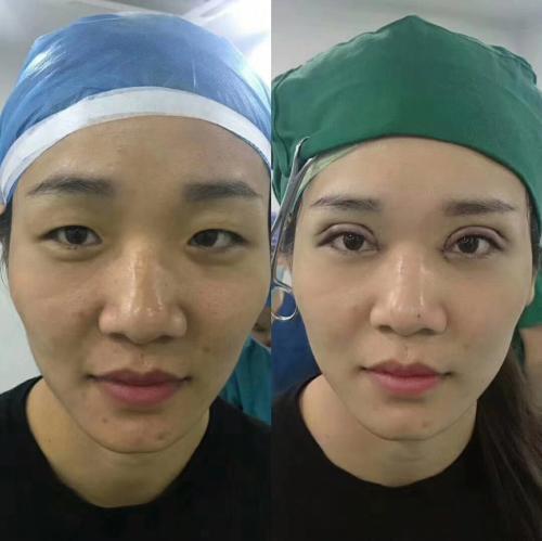 想学习双眼皮技术,去哪能学习双眼皮技术?多少钱能学?