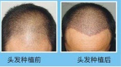 哪里有正规一些的毛发移植培训班?