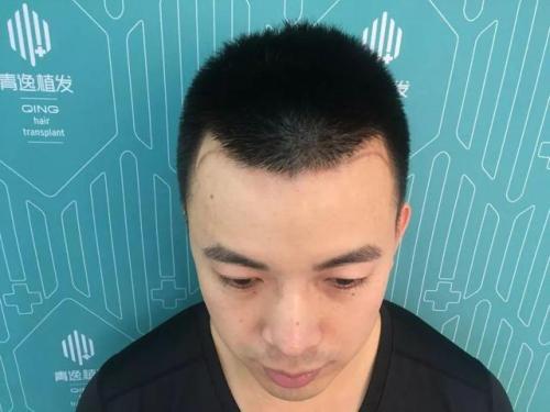 学习植发去哪学哪有正规的植发培训班?