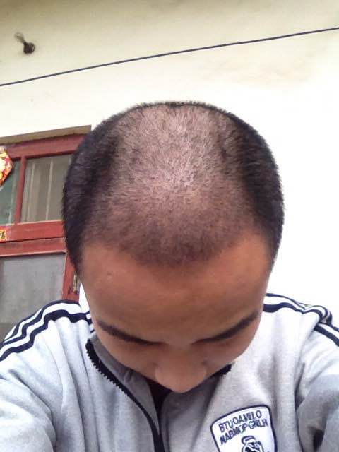 哪里有批准的正规的毛发移植培训班想学习