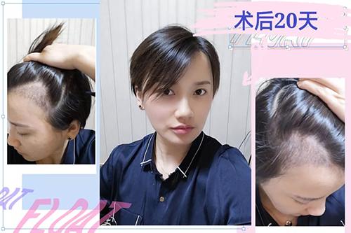 无痕植发毛发移植培训!去哪学习热门植发技术?现在学习毛发移植晚吗?