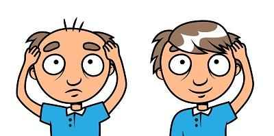 去哪里能学习植发?盘点热门风口无痕微针植发技术培训!