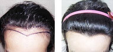 哪里可以学习植发哪里可以做植发?