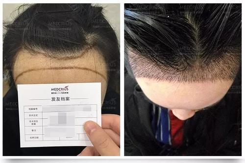 毛发移植培训植发培训get一个可以学习植发的好地方