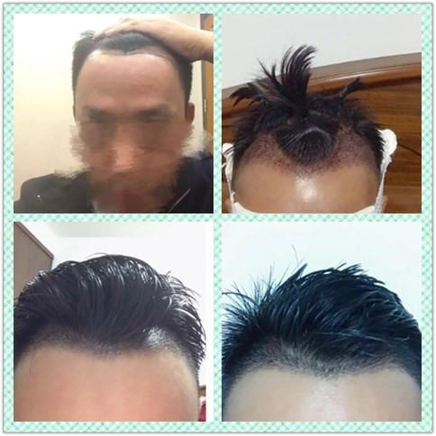 毛发移植培训无痕植眉培训FUE毛发移植培训
