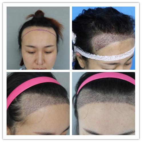 无痕微针植发是怎么操作的?