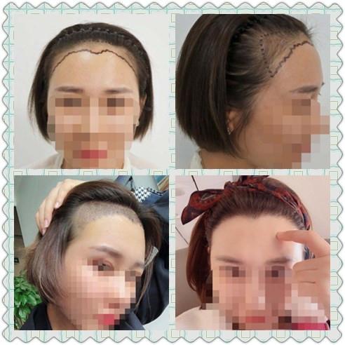 做植发的人多吗想学习植发这个技术行吗?